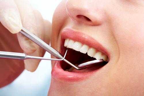 Teeth Cleaning Billings MT