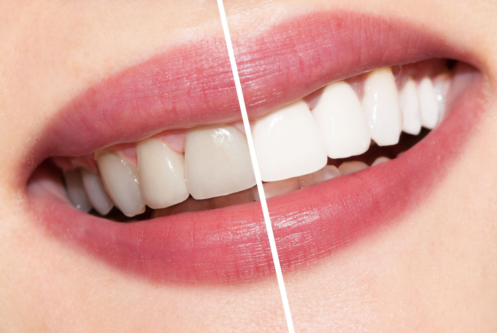 Teeth Whitening Billings MT