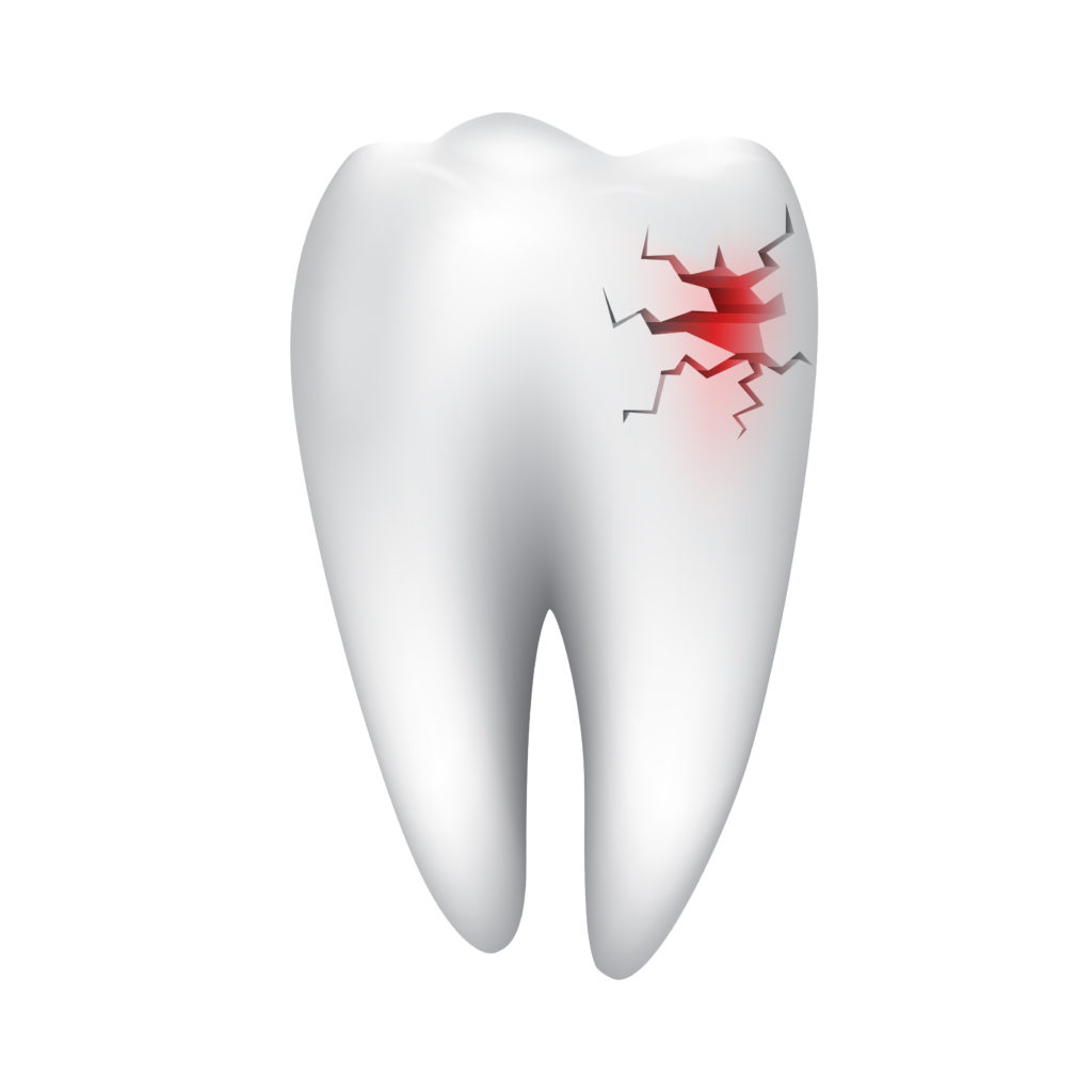 Cracked Tooth Treatment Billings MT