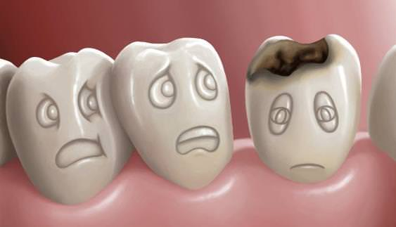 tooth decay treatment billings mt